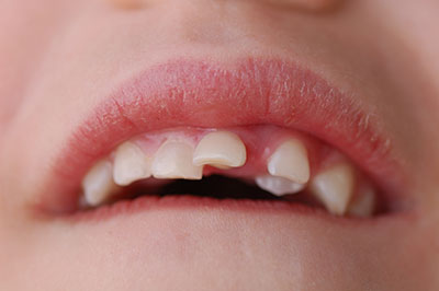 Close up on misaligned teeth and impacted canine teeth